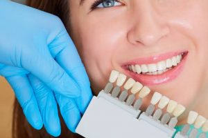 Which Teeth Whitening Methods Suits You?