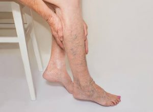 Things to know about varicose veins